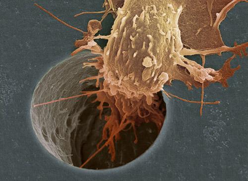 celula-cancer-filtro2
